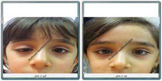 افتادگی پلک در کودکان
