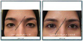 جراحی زیبایی کشیدن چشم