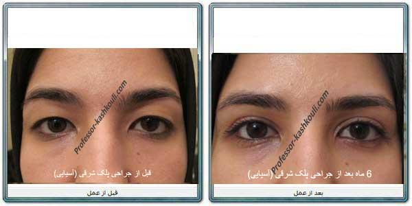 جراحی-زیبایی-کشیدن-چشم.jpg