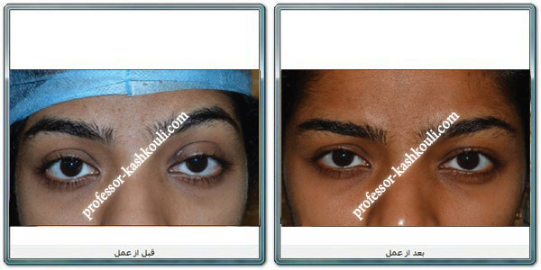 درمان-افتادگی-پلک-بالا2.jpg