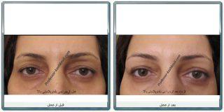 بهترین جراح زیبایی چشم