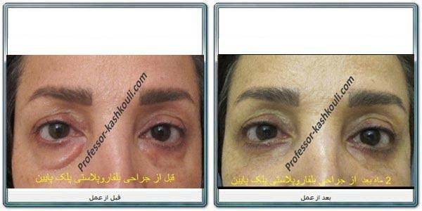 اقدامات-قبل-از-جراحی-پلک.jpg