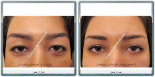 فوق تخصص جراحی پلاستیک چشم