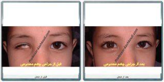 پروتز چشمی