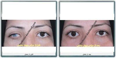 پروتز-چشمی.jpg