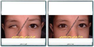 جراحی چشم مصنوعی