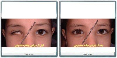 جراحی-چشم-مصنوعی.jpg