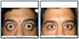 جراحی تیروئید چشم