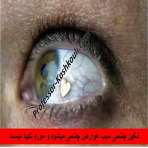 نگین چشمی