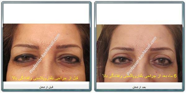 جراحی-لیزری-پلک3.jpg