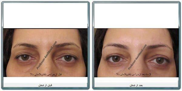 بهترین-جراح-زیبایی-چشم.jpg