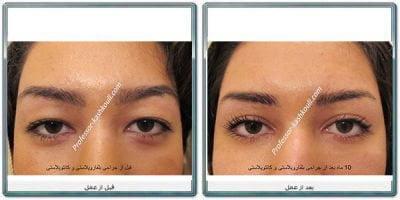 فوق-تخصص-جراحی-پلاستیک-چشم1.jpg