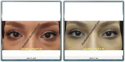 جراحی-زیبایی-چشم-1.jpg